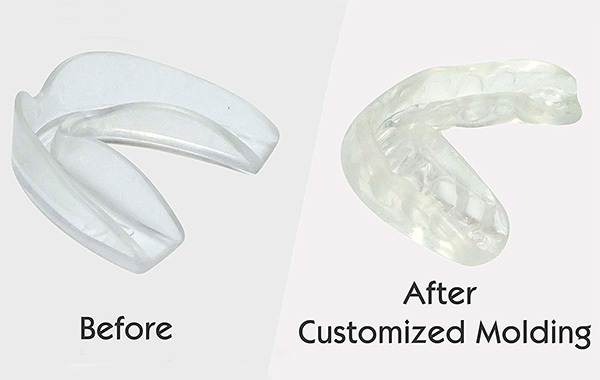 ProDental Sports Mouth Guard
